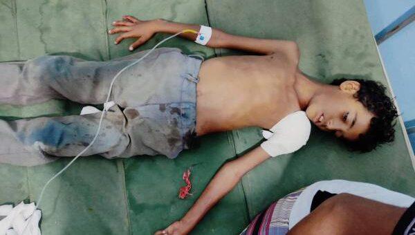 إصابة طفل برصاص ميليشيا الحوثي في حيس